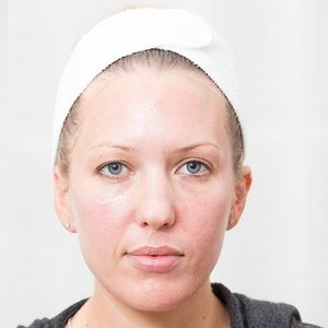 Immediately after a collagen treatment