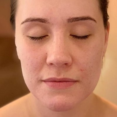 Jasmine after acne treatment at Skincare InsideOut