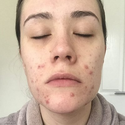 Jasmine before acne treatment at Skincare InsideOut