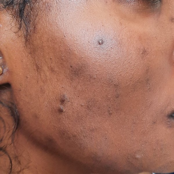 Lisa during acne treatment at Skincare InsideOut