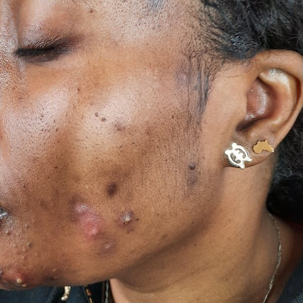 Lisa before acne treatment at Skincare InsideOut