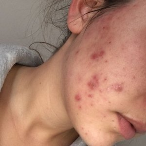 Lollie before starting her acne treatment at Skincare InsideOut