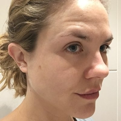 Louise after acne treatment at Skincare InsideOut