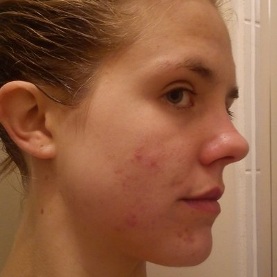Louise before acne treatment at Skincare InsideOut