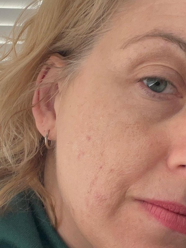 Lucia Roberts after acne treatment at Skincare InsideOut