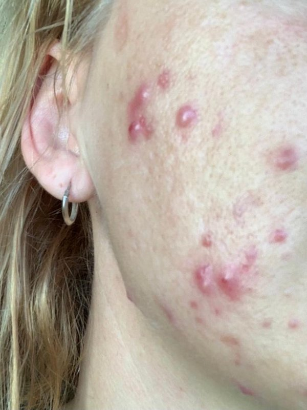 Lucia Roberts before acne treatment at Skincare InsideOut