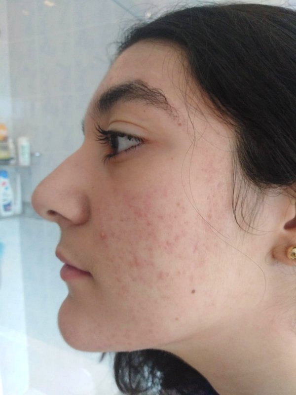 Lucia after acne treatment at Skincare InsideOut