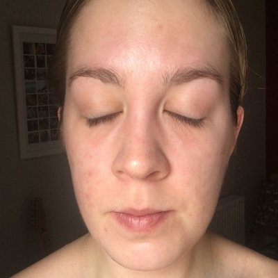 Lucie after acne treatment at Skincare InsideOut