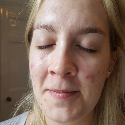 Lucie before acne treatment at Skincare InsideOut