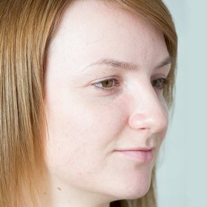 Penny after acne treatment at Skincare InsideOut