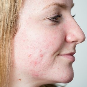 Penny before acne treatment at Skincare InsideOut