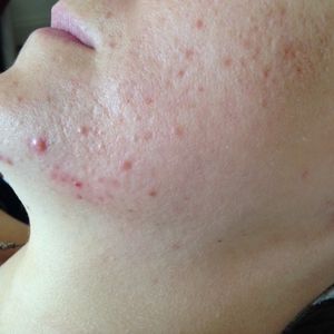 Sarah before acne treatment at Skincare InsideOut