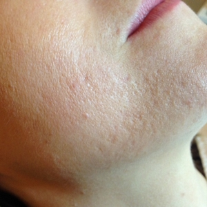 Sarah 3 months into her acne treatment at Skincare InsideOut