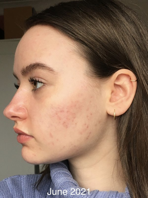 UB Pearson after acne treatment at Skincare InsideOut