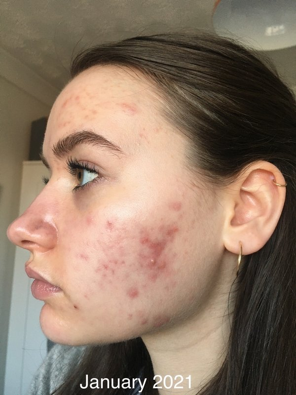 UB Pearson before acne treatment at Skincare InsideOut