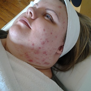 Larissa before acne treatment at Skincare InsideOut
