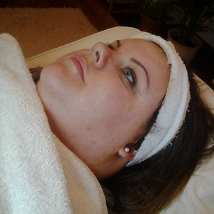 Larissa after acne treatment at Skincare InsideOut without make-up