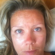Zoe Before Pigmentation Peel treatment with Skincare InsideOut